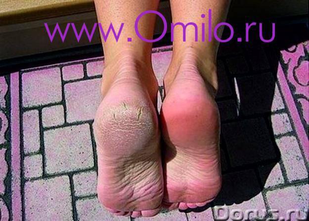 Пилинг носочки Тюмень - Косметические услуги - Мягкий пиллинг для огрубевшей кожи ног Устали боротьс..., фото 1