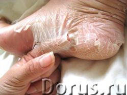 Носочки для пилина Мягкие пяточки Тюмень - Косметика и парфюмерия - Болят ступни? Трескается кожа на..., фото 1